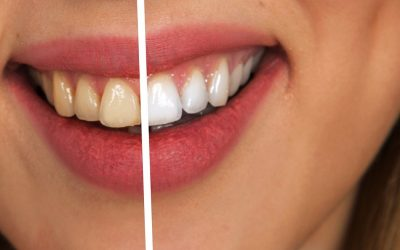 Best Foods for healthy Teeth